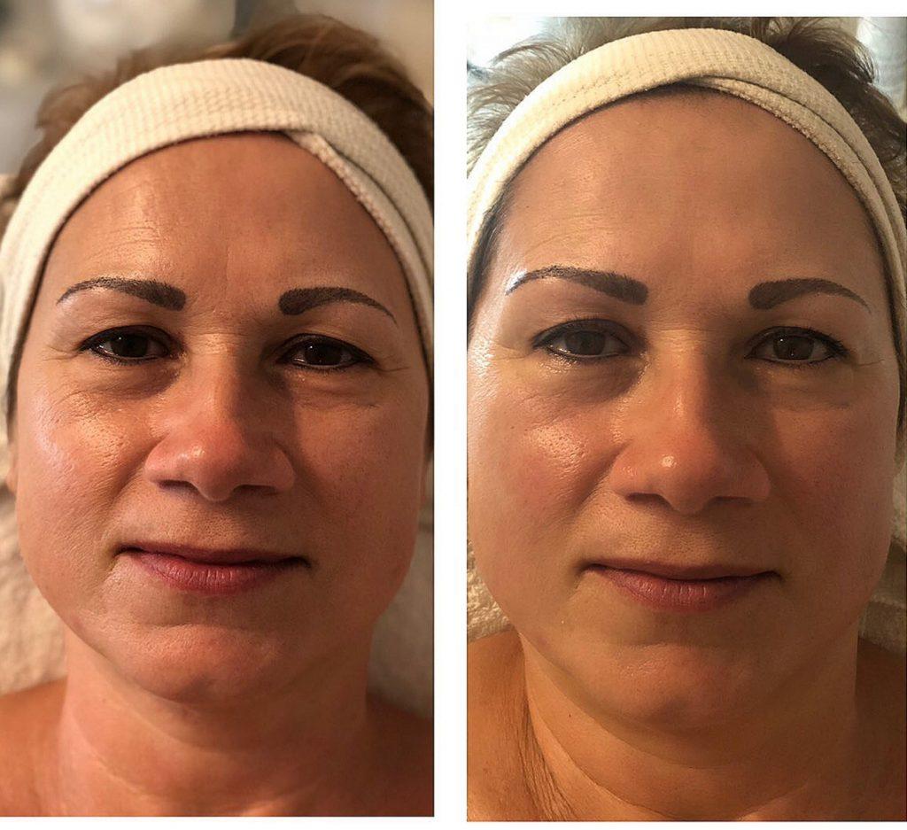 Kaviáros anti aging arckezelés igénybevett bőrre