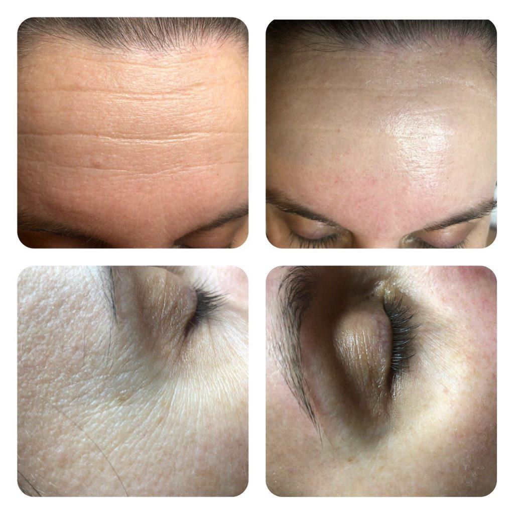 Platinum anti aging kezelés